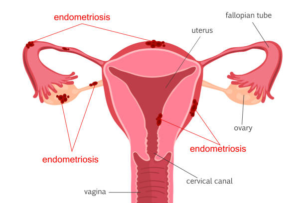 """Women"" not allowed: Endometriosis Network Complicit in Female Erasure"